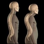 men can develop osteoporosis as young as 34