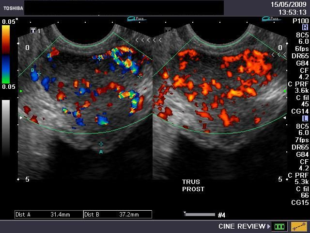 color doppler diagnoses prostate cancer