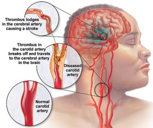 The Signs Of The Emergence Of a Stroke